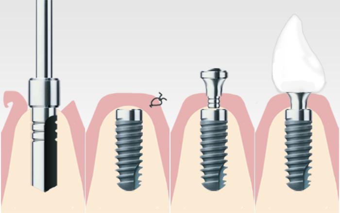 implantologie ihr zahnarzt in r dermark frank b tow. Black Bedroom Furniture Sets. Home Design Ideas